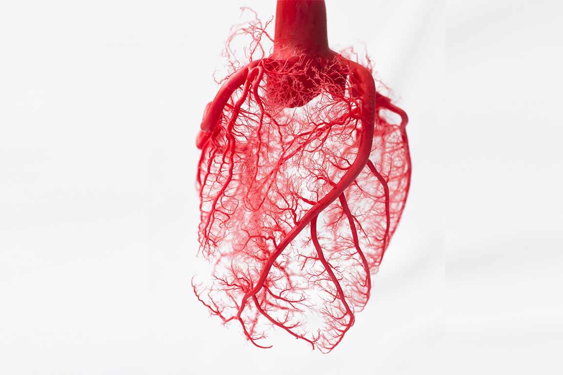 Unitat de cardiopatia isquèmica